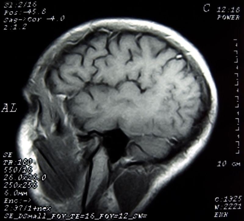 What Having A Brain Tumor Has Taught Me